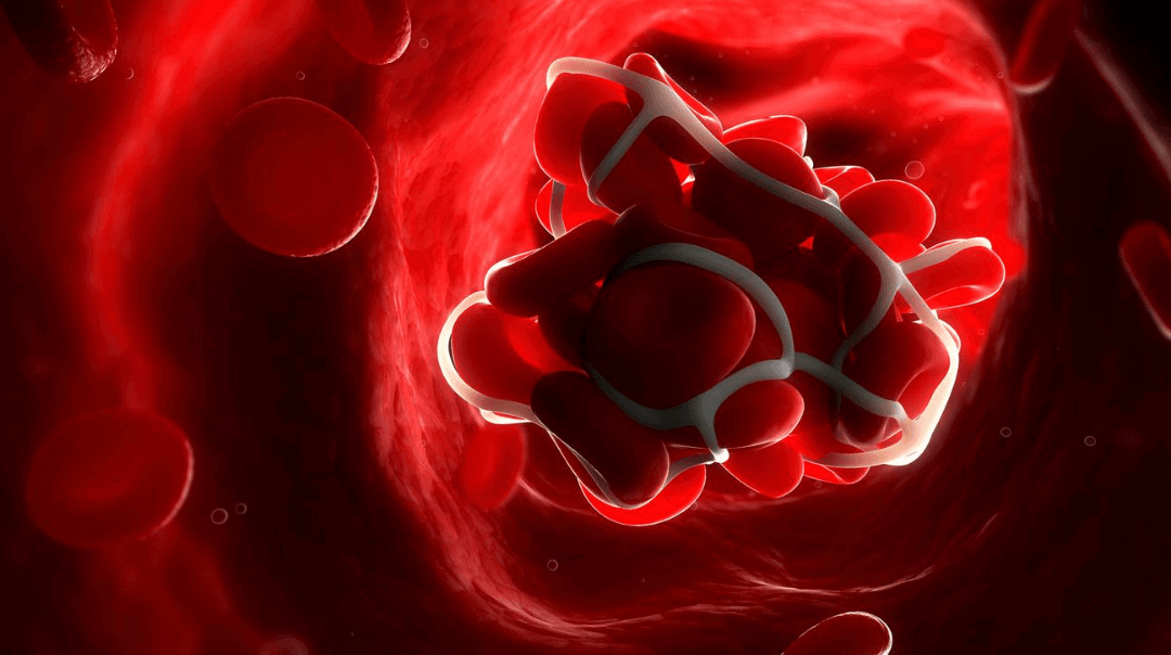 Blood Clots: Everything you should know