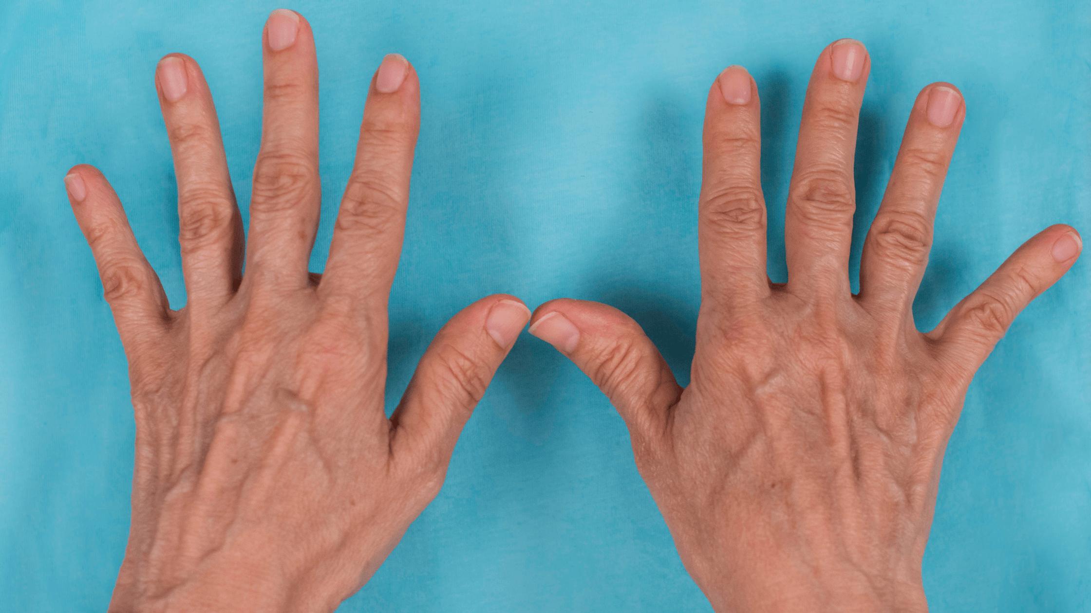 Affinity Health Dispels The Biggest Myths About Rheumatoid Arthritis