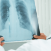 Affinity Health On The Importance Of Spreading Awareness Around TB